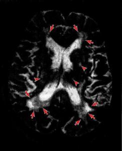 MPT-снимок головного мозга при сосудистой деменции