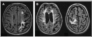 МРТ-признаки сосудистой деменции (А – множественные очаги ишемии слева, В – наличие обширного лейкоареоза и очага ишемии справа)