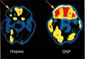 Активность головного мозга типичного человека с обсессмвно-комульсивным расстройством