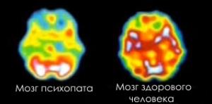 МРТ головного мозга здорового человека и психопата