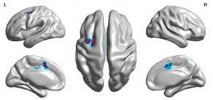 Области мозга, участвующие в первичном прогрессировании апраксии речи