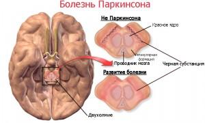 Рисунок, отражающий изменения в головном мозге человека при болезни Паркинсона