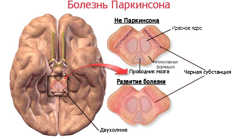 Паркинсонизм фото