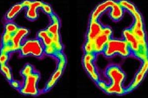 Сканирование обоих полушарий мозга человека, обладающего тревожным расстройством. На снимке видно очень много активных областей, которые находятся в спокойном состоянии у здорового человека.