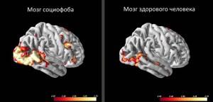 Социофобы отличаются повышенной активностью передней (лобной) части головного мозга, что и показано на снимке. Особенно эта область у социофобов активизируется в моменты визуализации либо психической реакции.
