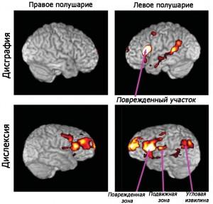 Пораженные участки мозга при дисграфии и дислексии