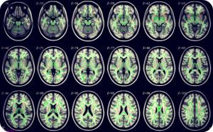 На данном снимке изображены фазовые изменения активности различных областей головного мозга во время проявления тревожного расстройства у индивида