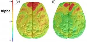 На левом снимке изображен мозг депрессивного человека, на правом – здорового. Красная область показывает высокую активность лобной доли у депрессивных людей и возможность контроля эмоций у здоровых.