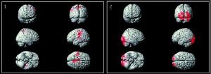 1.  Области мозга, обладающие большей активностью у людей с алекситимией. 2. Области мозга, проявляющие меньше активности у людей с Алекситимией.