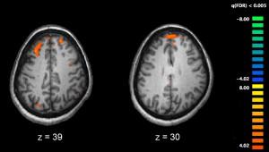 Снимок МРТ показывает активные области мозга человека, страдающего конфабуляцией, участвующие при выполнении задач на работу памяти.
