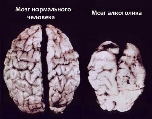 Фото человеческого мозга после вскрытия. Слева - здорового человека, справа - злоупотреблявшего алкоголем.
