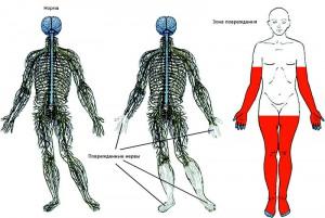 Поражение нервов при алкогольной  полинейропатии