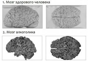 Влияние алкоголя на мозг человека.
