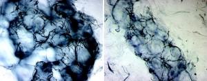 Микрофотография плотности нервных волокон.  Слева: здоровый человек. Справа: пациент с периферической нейропатией.