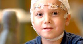 детская эпилепсия