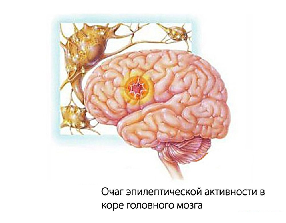 Эпилептогенный