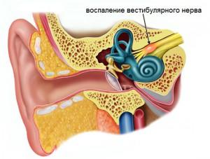 Строение внутреннего уха и поражение вестибулярного нерва