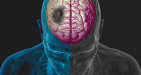 Kognitivnye-narushenija
