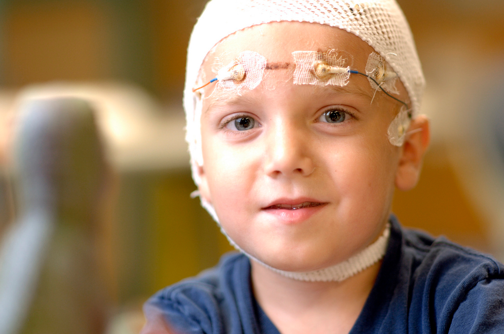 the surgical prevention of epilepsy in children and the process of determining the outcome of the su Osteomyelitis is an infection of the bone, a rare but serious condition bones can become infected in a number of ways: infection in one part of the body may spread through the bloodstream into.